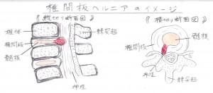 椎間板ヘルニア イメージ図